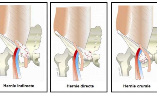 image hernie types inguinal